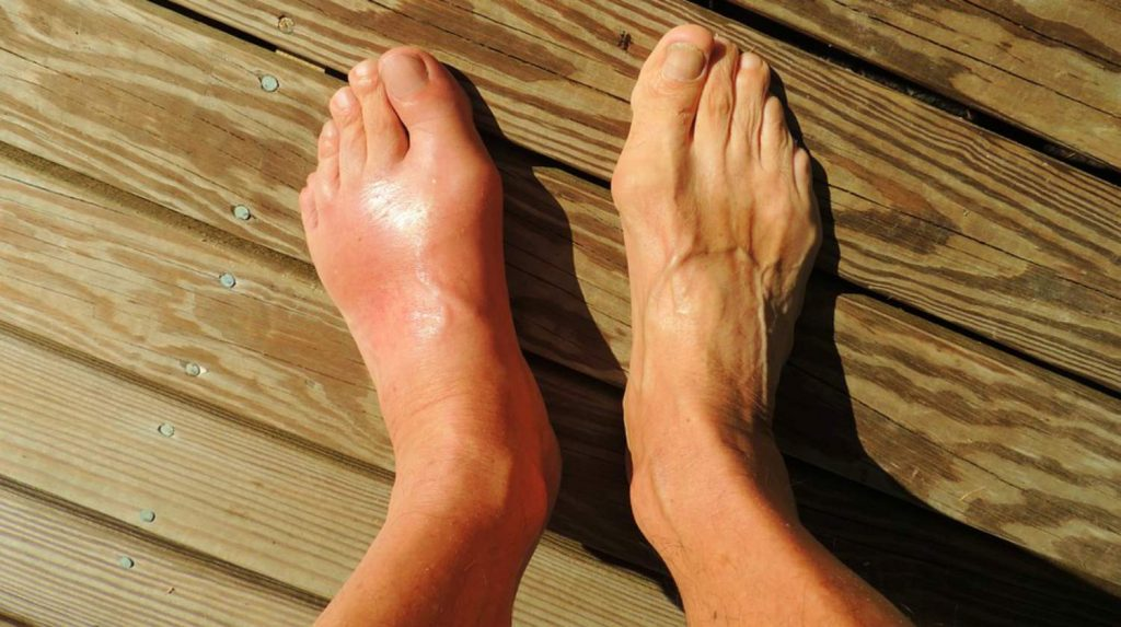 CBG For Gout