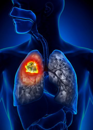 CBD for Cystic Fibrosis